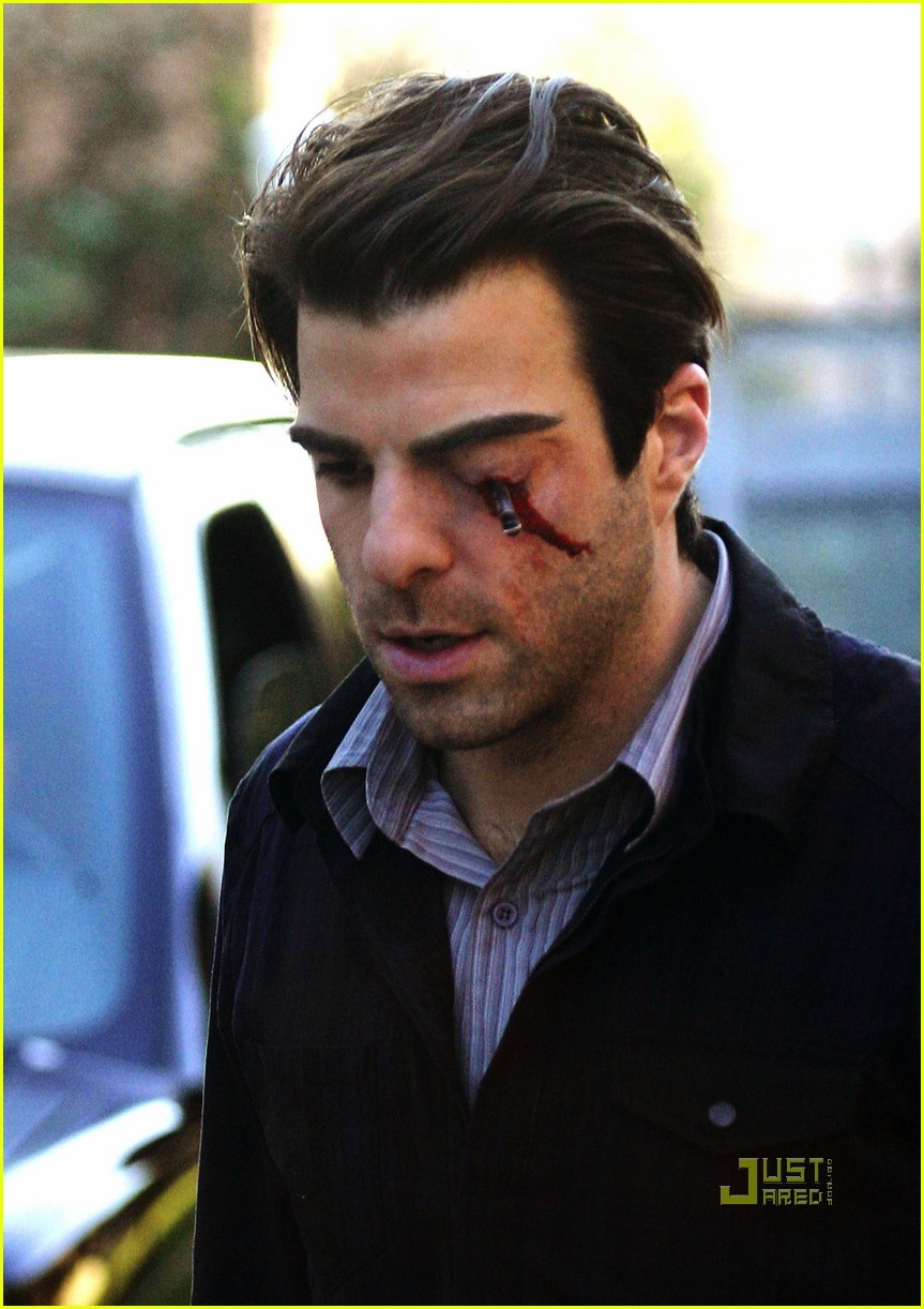 zachary quinto pen stabbed eye 03