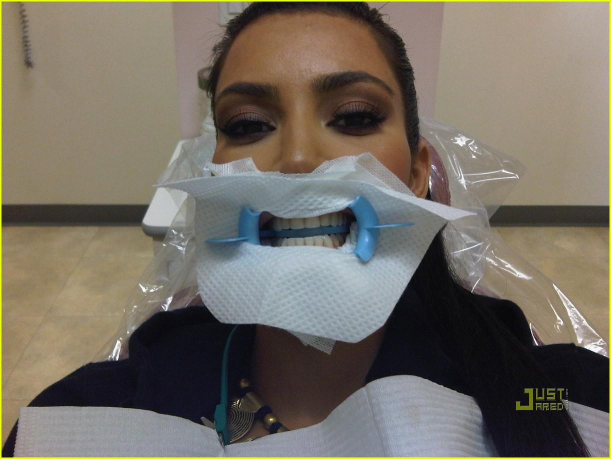 kim kardashian dentist 012401349