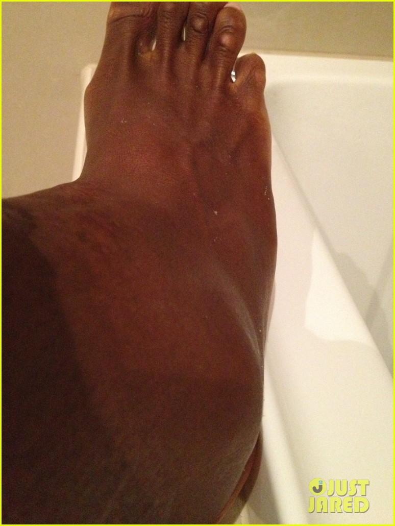 serena williams reveals swollen ankle after breaking racquet 04