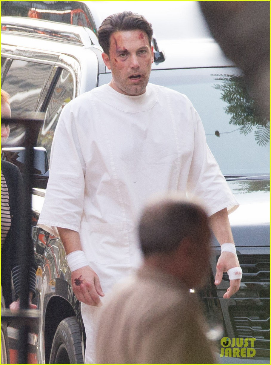 Full Sized Photo of ben affleck wears a hospital gown while bloody ...