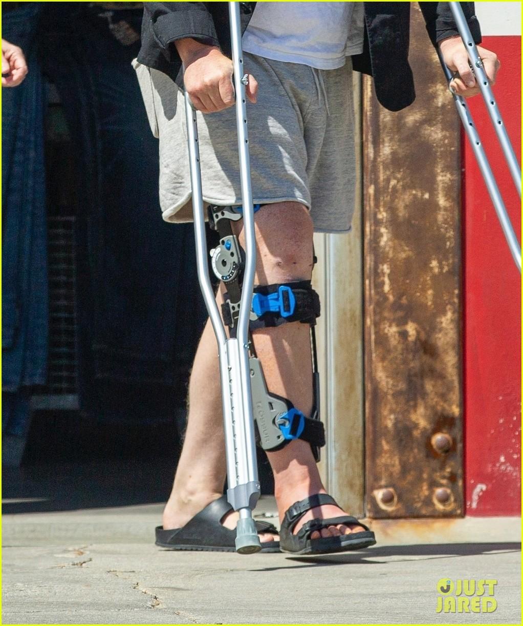 jesse plemons wears leg brace kirsten dunst baby no 2 04