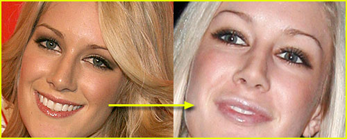 Heidi Montag Has New Lips