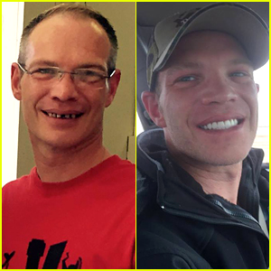 This Waiter's Smile Transformation Story Will Make YOU Smile