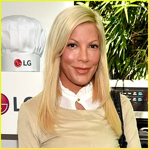 Tori Spelling Sues Benihana After Suffering 3rd Degree Burns