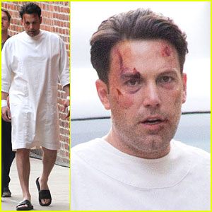 Ben Affleck Wears a Hospital Gown While Bloody & Beaten