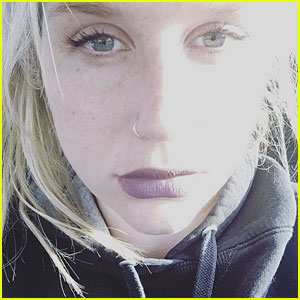 Kesha Writes Message to Fans, Face Is Swollen from Tears