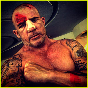 Dominic Purcell Suffers Broken Nose & Head Injury in 'Prison Break' Set Accident