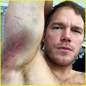 Chris Pratt Shows His Insane Muscles (Complete with Huge Bruises) from 'Passengers' Stunts!