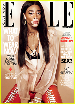 Winnie Harlow Tells 'Elle Canada' She Prefers To Be Called An Inspiration, Not A Role Model!